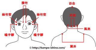 028緑内障で頭痛.jpg